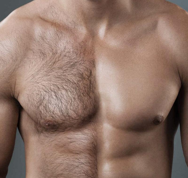procedure spa wax depilation lycon for men Восковая SPA-депиляция LYCON™ для мужчин